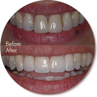Before After Ec4dental 3 San Francisco Dentist Cosmetic Dentist