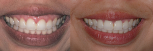 Before and After Pictures. Gummy Smile. Dorothy Gogol-Mach DDS